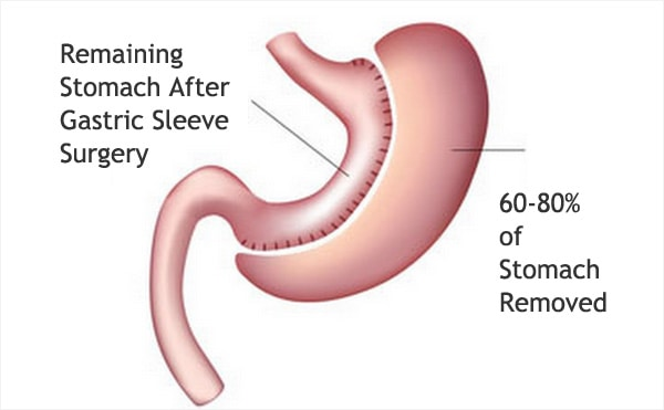 stomach after gastric sleeve surgery
