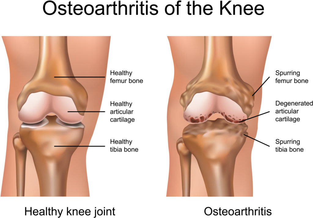 Osteoarthritis can be worsed by obesity, and helped by bariatric surgery